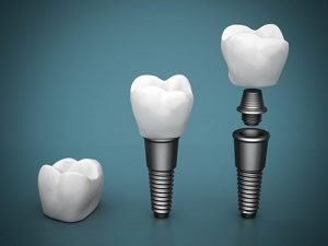 Bendigo Smiles Dentist | Dental Implants | Dentist Bendigo