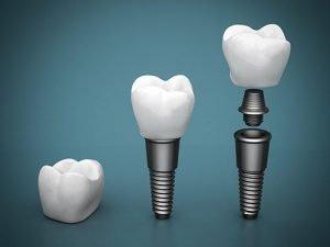 Bendigo Smiles Dentist | Dental Implants | Dentist Bendigo
