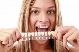 Bendigo Smiles Dentist | Dental Veneers| Dentist Bendigo