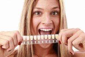 Bendigo Smiles Dentist | Dental Veneers| Dentist Bendigo