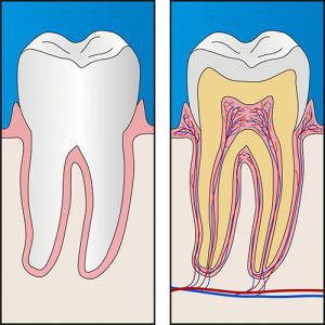 Bendigo Smiles Dentist | Root Canal Therapy | Dentist Bendigo