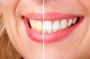 Bendigo Smiles Dentist | Teeth Whitening | Dentist Bendigo