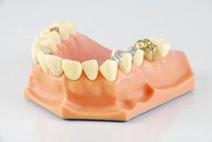 Bendigo Smiles Dentist | Lost Fillings Crown Or Inlay Onlay | Dentist Bendigo