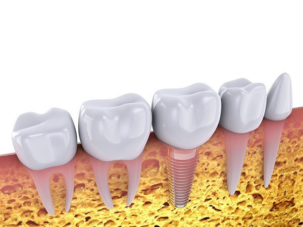 Dental Implants – The Tooth Replacement Advantage